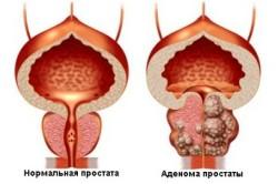Отличие нормальной простаты от больной аденомой простаты