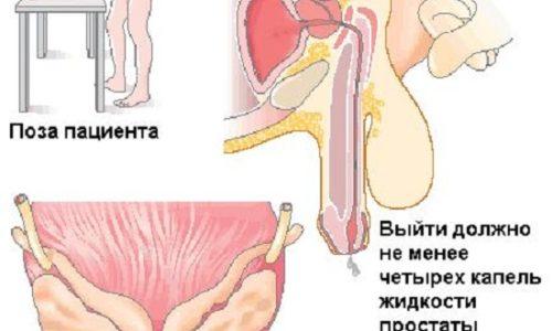 Где и кто лечит хронический простатит простатит у мужчин опасен ли для женщины