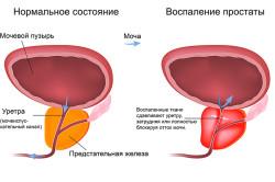 Схема хронического простатита
