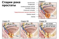 Основные стадии рака простаты