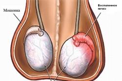 Воспаление придатков яичек - причина бесплодия у мужчин