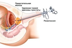 Принцип оперативного лечения простатита